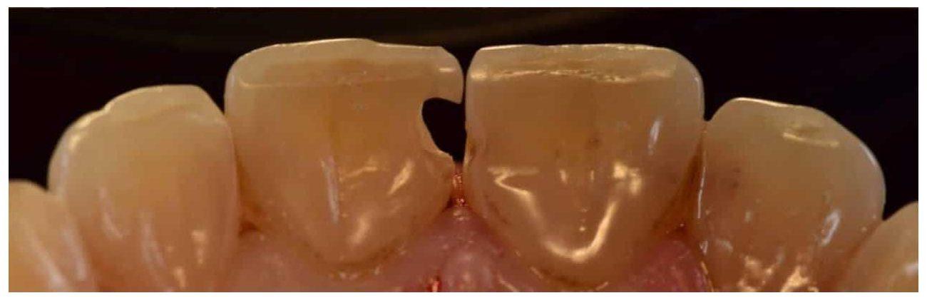 clinica ecosmile caz stomatolog inainte de lucrare