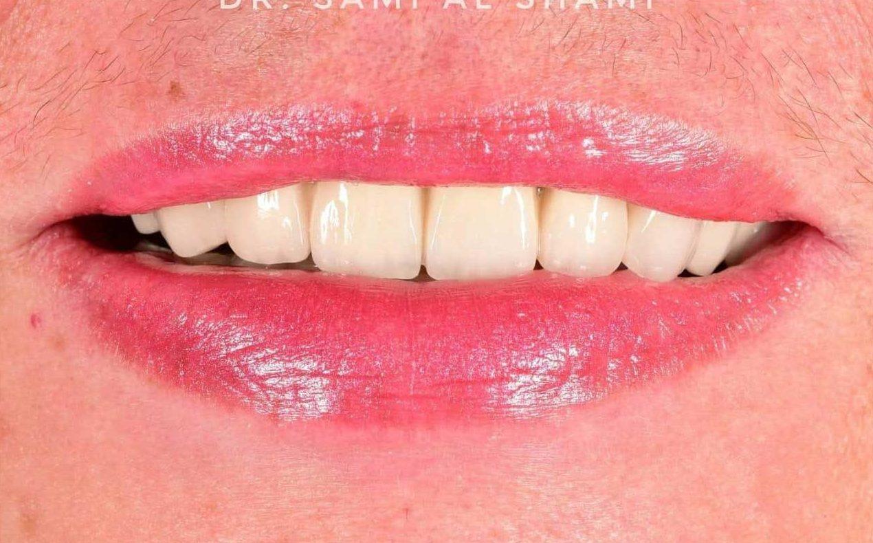 stomatologie craiova ecosmile caz stomatolog dupa lucrare