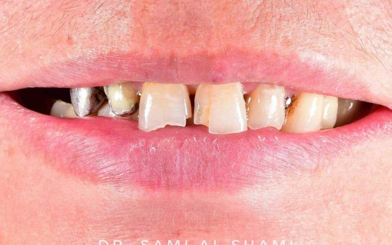 ecosmile craiova caz stomatolog inainte de lucrare
