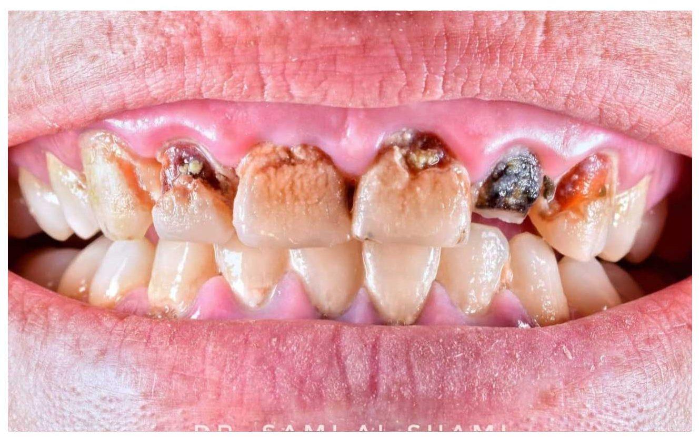craiova clinica ecosmile caz stomatolog inainte de lucrare