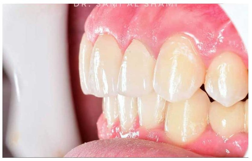 ecosmile dentist craiova dupa lucrare