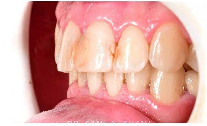 ecosmile dentist craiova inainte de lucrare