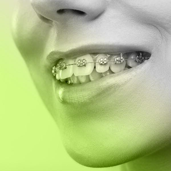 Eco Smile ortodontie