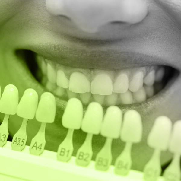 Eco Smile protetica dentara