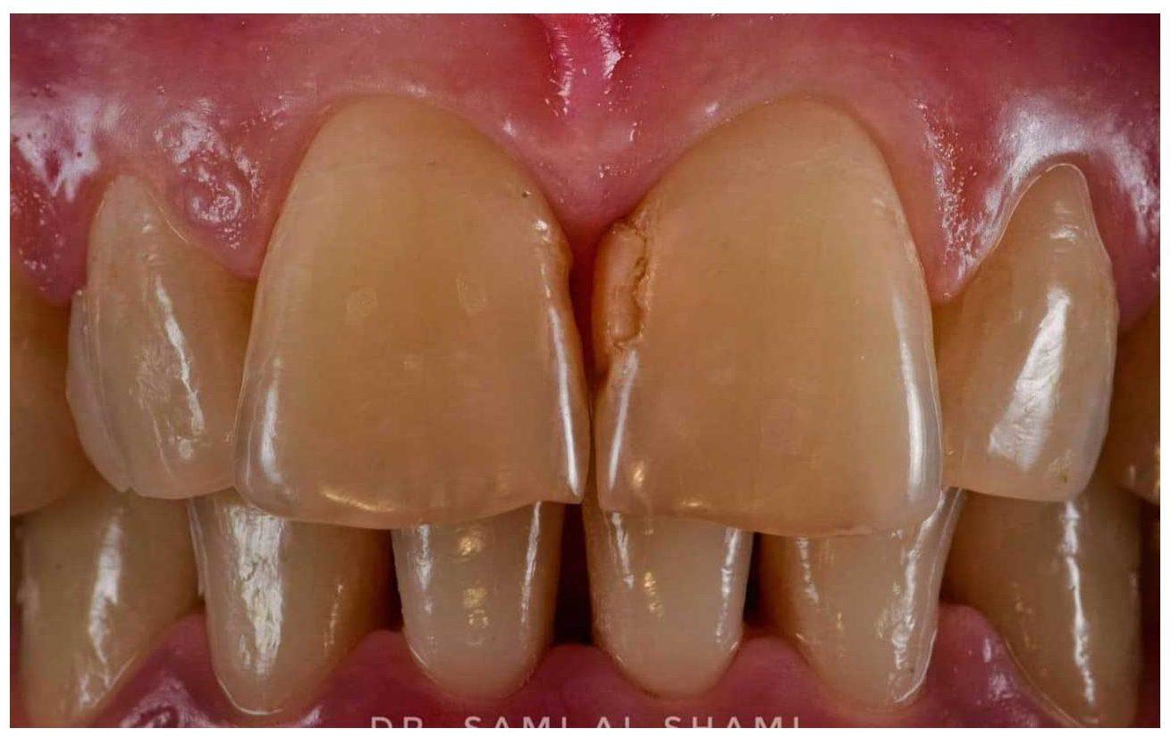ecosmile caz stomatolog inainte de lucrare