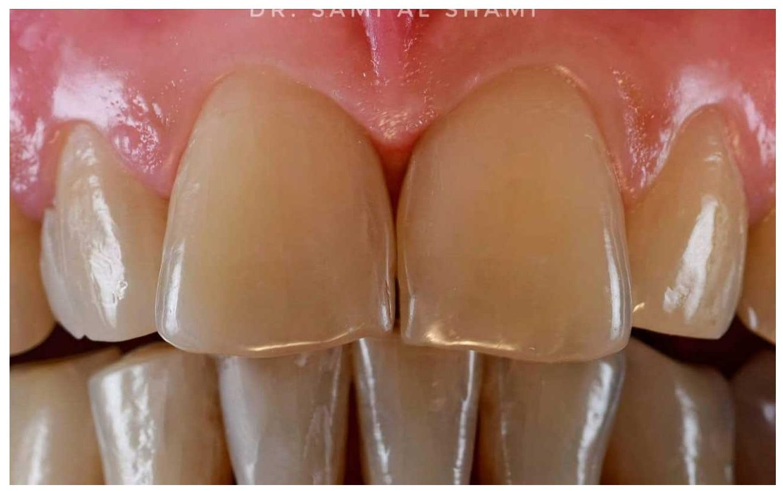 ecosmile caz stomatolog dupa lucrare